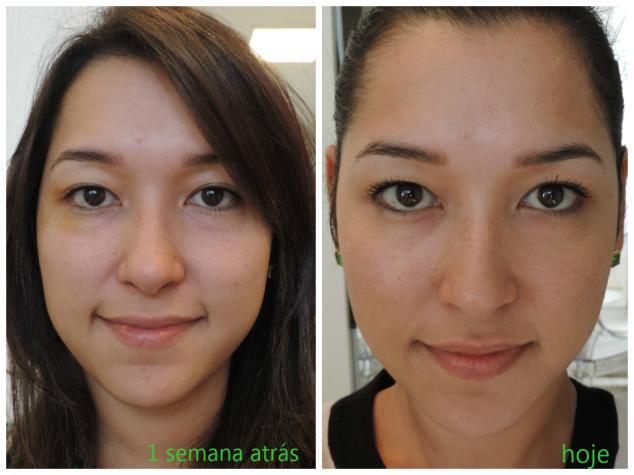 A diferença da pele com uma semana de uso do Estee Lauder Advanced Night Repair, diminuição das olheiras, melhora na firmeza e luminosidade da pele. Nas duas fotos estou sem base, apenas na segunda estou usando um rímel!