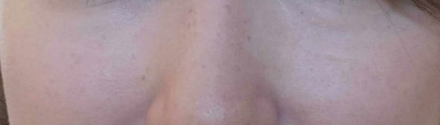 Vejam como na área das bochechas clarearam as minhas sardinhas e a minha pele está mais clara e homogênea!